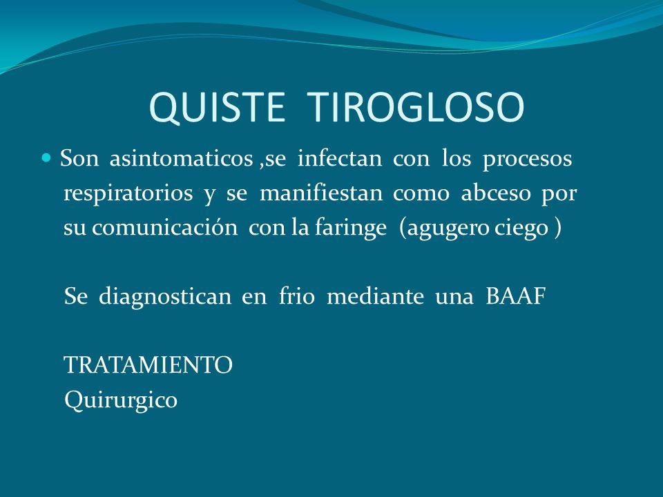 QUISTE TIROGLOSO Son asintomaticos,se infectan con los procesos respiratorios y se manifiestan como abceso por su comunicación con la faringe (agugero