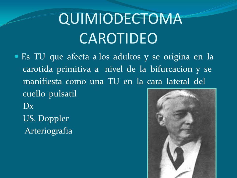 QUIMIODECTOMA CAROTIDEO Es TU que afecta a los adultos y se origina en la carotida primitiva a nivel de la bifurcacion y se manifiesta como una TU en