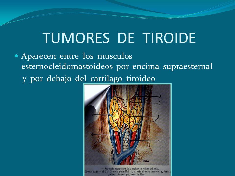 TUMORES DE TIROIDE Aparecen entre los musculos esternocleidomastoideos por encima supraesternal y por debajo del cartilago tiroideo