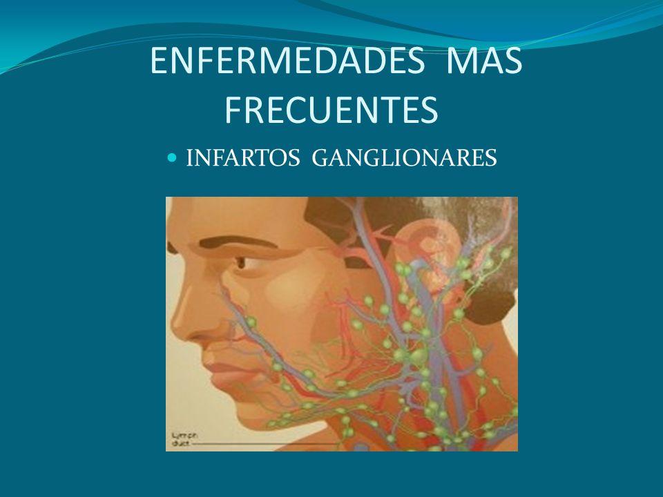 ENFERMEDADES MAS FRECUENTES INFARTOS GANGLIONARES