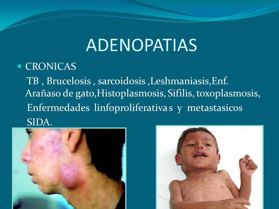 ADENOPATIAS CRONICAS TB, Brucelosis, sarcoidosis,Leshmaniasis,Enf. Arañaso de gato,Histoplasmosis, Sifilis, toxoplasmosis, Enfermedades linfoprolifera