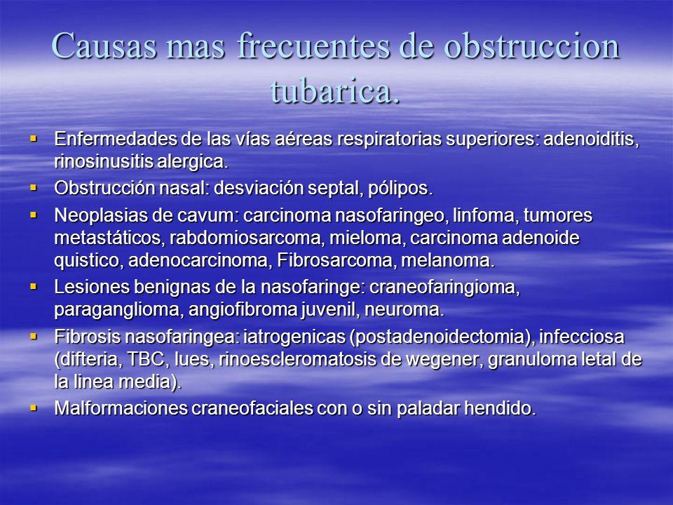 Causas mas frecuentes de obstruccion tubarica. Enfermedades de las vías aéreas respiratorias superiores: adenoiditis, rinosinusitis alergica. Enfermed