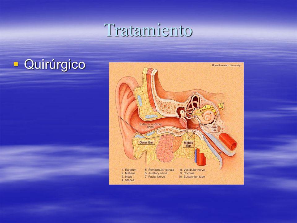 Tratamiento Quirúrgico Quirúrgico
