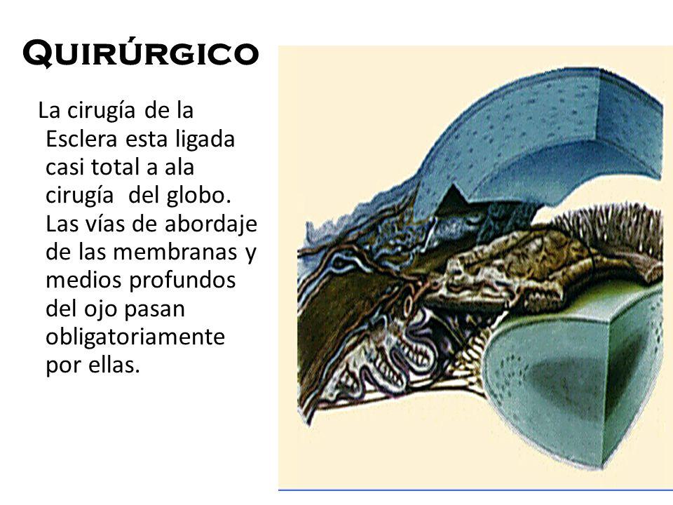 Quirúrgico La cirugía de la Esclera esta ligada casi total a ala cirugía del globo. Las vías de abordaje de las membranas y medios profundos del ojo p