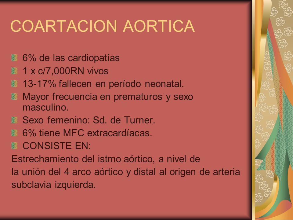 COARTACION AORTICA 6% de las cardiopatías 1 x c/7,000RN vivos 13-17% fallecen en período neonatal. Mayor frecuencia en prematuros y sexo masculino. Se