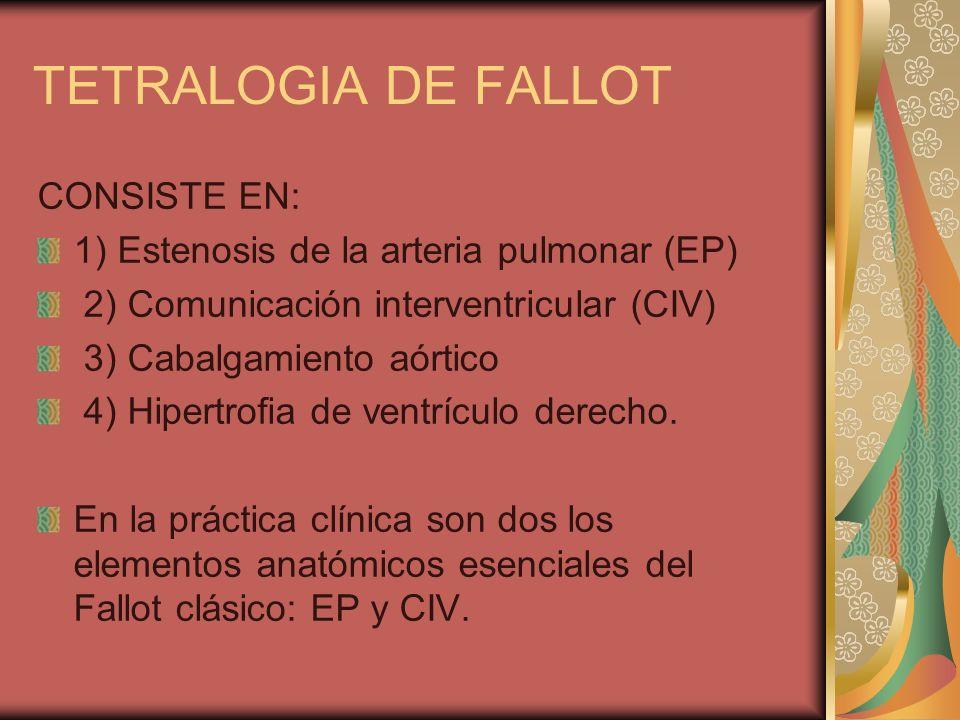 TETRALOGIA DE FALLOT CONSISTE EN: 1) Estenosis de la arteria pulmonar (EP) 2) Comunicación interventricular (CIV) 3) Cabalgamiento aórtico 4) Hipertro