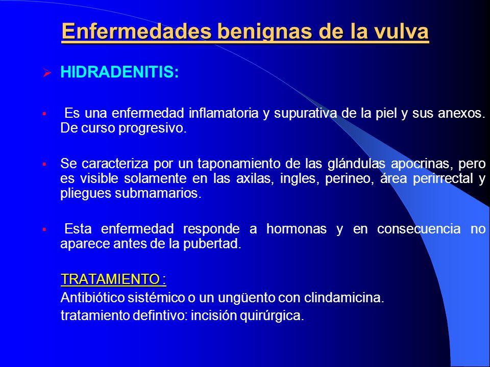 Enfermedades benignas de la vulva HIDRADENITIS: Es una enfermedad inflamatoria y supurativa de la piel y sus anexos. De curso progresivo. Se caracteri