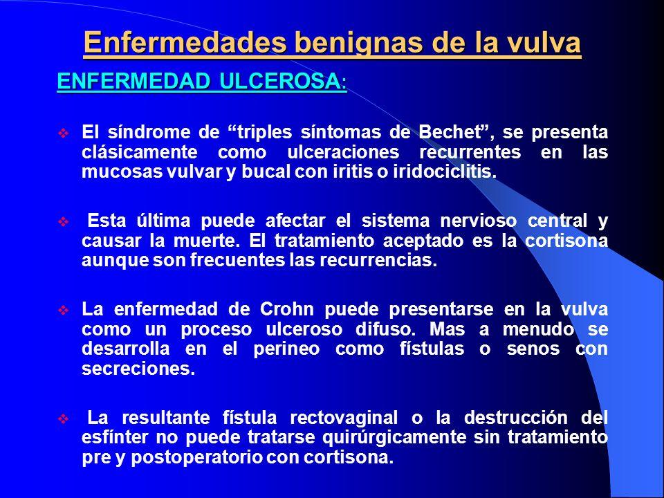 Enfermedades benignas de la vulva ENFERMEDAD ULCEROSA : El síndrome de triples síntomas de Bechet, se presenta clásicamente como ulceraciones recurren