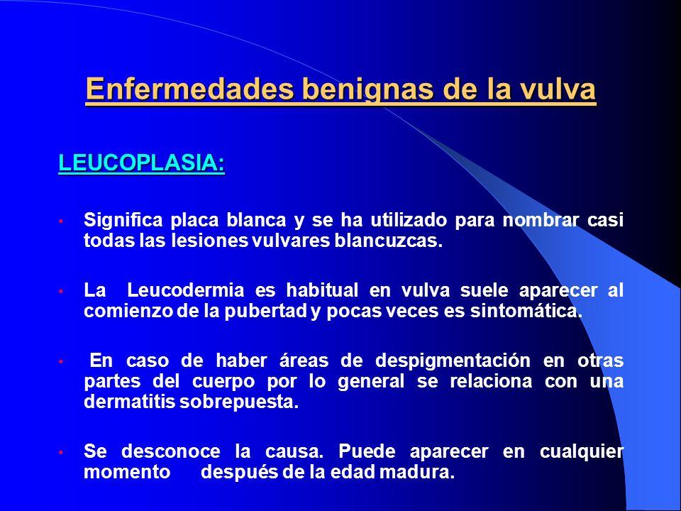 Enfermedades benignas de la vulva LEUCOPLASIA: Significa placa blanca y se ha utilizado para nombrar casi todas las lesiones vulvares blancuzcas. La L