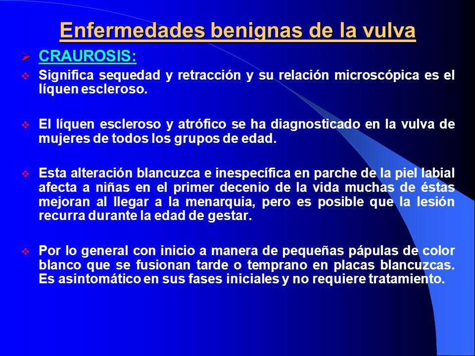 Enfermedades benignas de la vulva CRAUROSIS: CRAUROSIS: Significa sequedad y retracción y su relación microscópica es el líquen escleroso. El líquen e