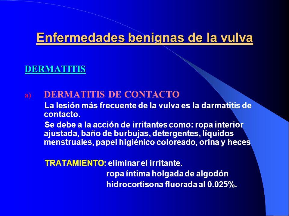 Enfermedades benignas de la vulva DERMATITIS a) DERMATITIS DE CONTACTO La lesión más frecuente de la vulva es la darmatitis de contacto. Se debe a la