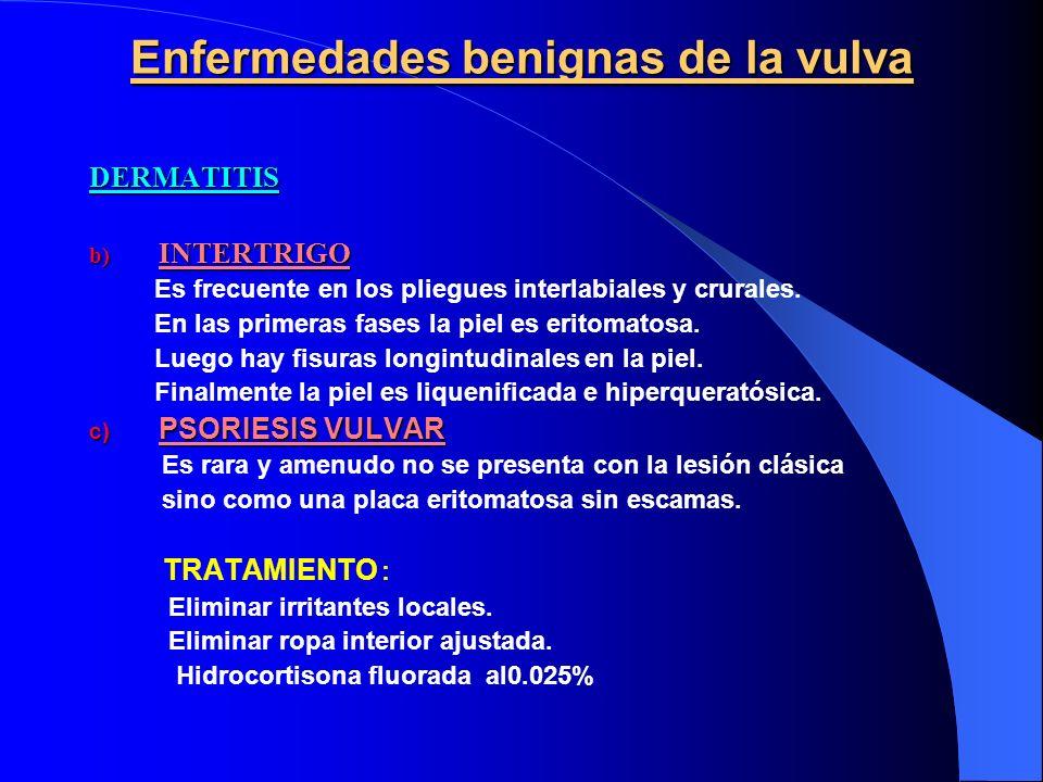 Enfermedades benignas de la vulva DERMATITIS b) INTERTRIGO Es frecuente en los pliegues interlabiales y crurales. En las primeras fases la piel es eri