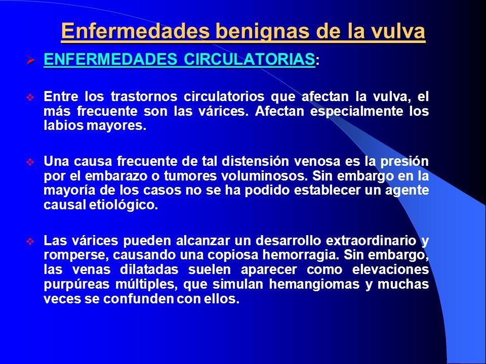 Enfermedades benignas de la vulva ENFERMEDADES CIRCULATORIAS ENFERMEDADES CIRCULATORIAS : Entre los trastornos circulatorios que afectan la vulva, el