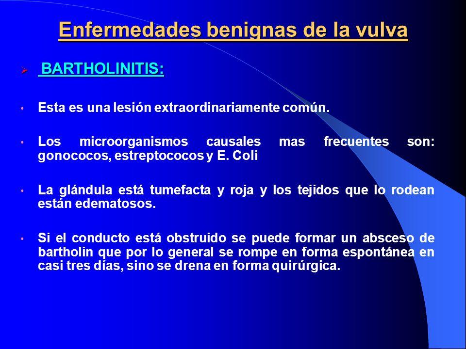 Enfermedades benignas de la vulva BARTHOLINITIS: BARTHOLINITIS: Esta es una lesión extraordinariamente común. Los microorganismos causales mas frecuen