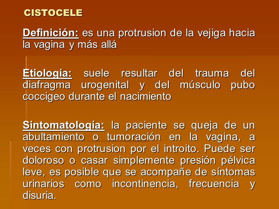 CISTOCELE Definición: es una protrusion de la vejiga hacia la vagina y más allá Etiología: suele resultar del trauma del diafragma urogenital y del mú