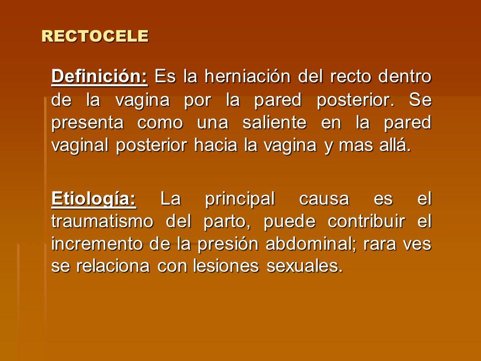 RECTOCELE Definición: Es la herniación del recto dentro de la vagina por la pared posterior. Se presenta como una saliente en la pared vaginal posteri