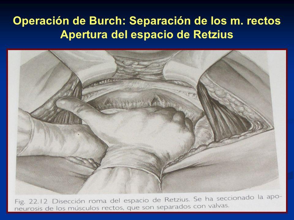 Operación de Burch: Separación de los m. rectos Apertura del espacio de Retzius
