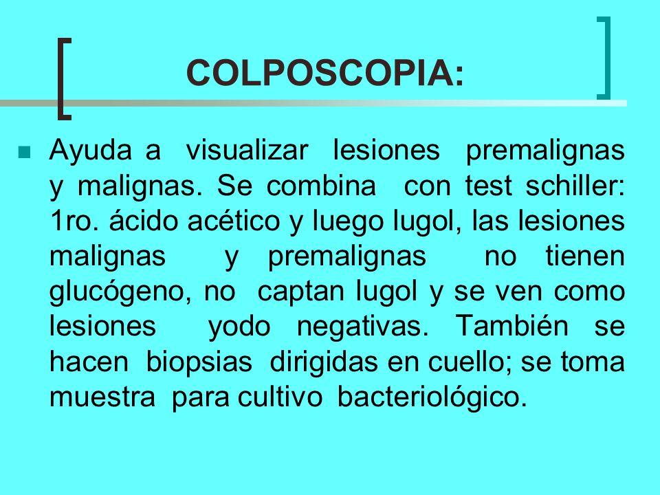 COLPOSCOPIA: Ayuda a visualizar lesiones premalignas y malignas. Se combina con test schiller: 1ro. ácido acético y luego lugol, las lesiones malignas