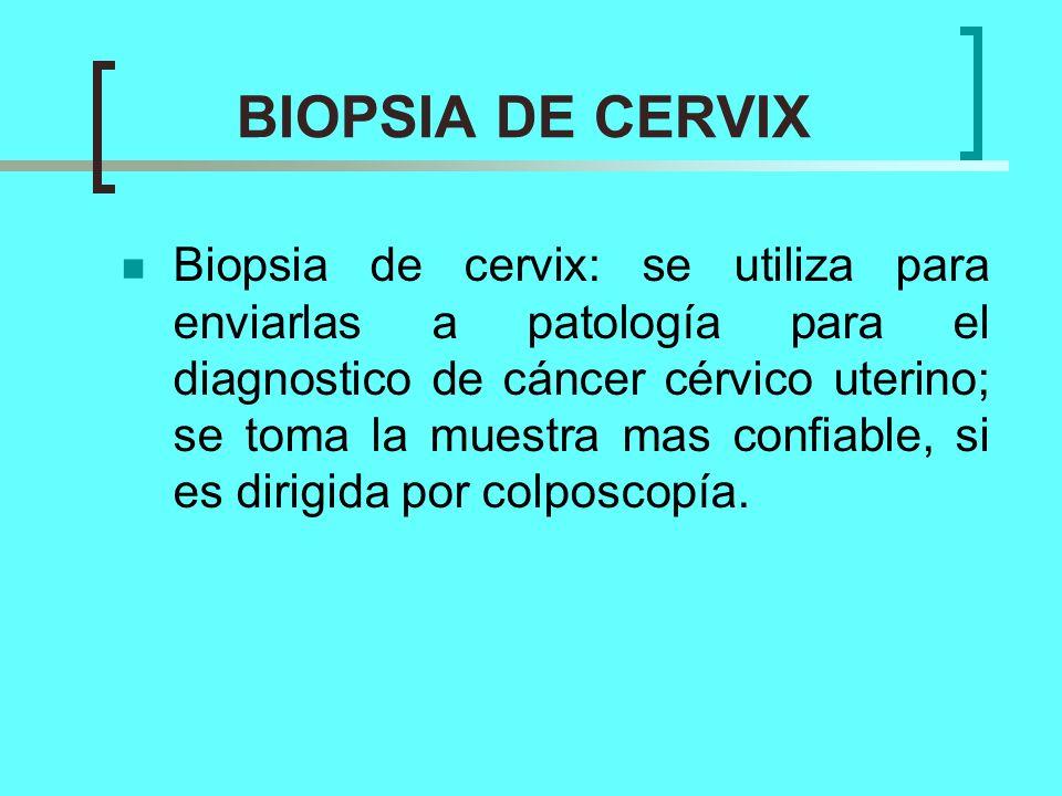 BIOPSIA DE CERVIX Biopsia de cervix: se utiliza para enviarlas a patología para el diagnostico de cáncer cérvico uterino; se toma la muestra mas confi