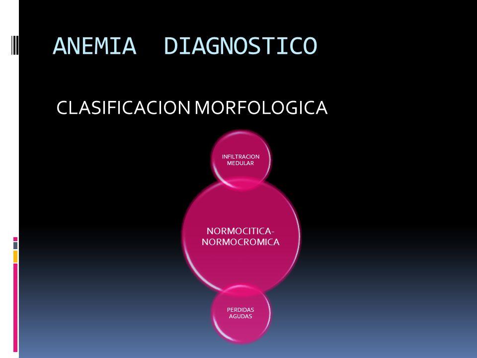 ANEMIA DIAGNOSTICO CLASIFICACION MORFOLOGICA NORMOCITICA- NORMOCROMICA INFILTRACION MEDULAR PERDIDAS AGUDAS