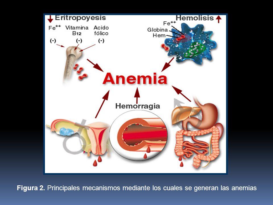 Figura 2. Principales mecanismos mediante los cuales se generan las anemias