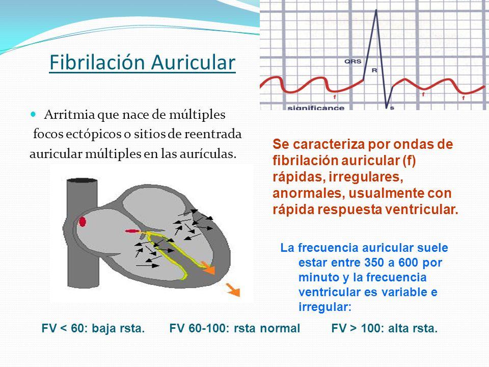 Fibrilación Auricular Arritmia que nace de múltiples focos ectópicos o sitios de reentrada auricular múltiples en las aurículas. Se caracteriza por on