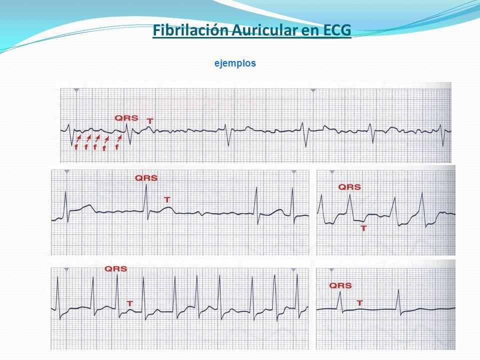 Fibrilación Auricular en ECG ejemplos