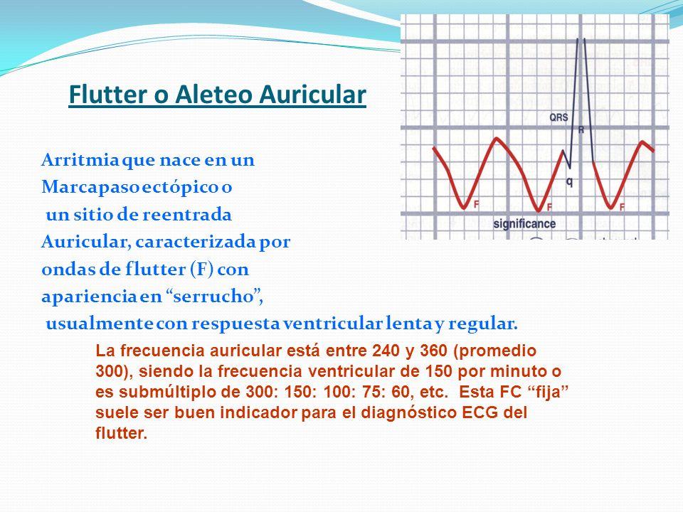 Flutter o Aleteo Auricular Arritmia que nace en un Marcapaso ectópico o un sitio de reentrada Auricular, caracterizada por ondas de flutter (F) con ap