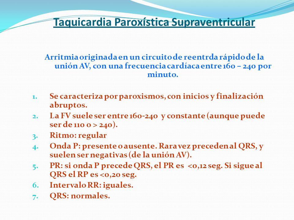 Taquicardia Paroxística Supraventricular Arritmia originada en un circuito de reentrda rápido de la unión AV, con una frecuencia cardíaca entre 160 –