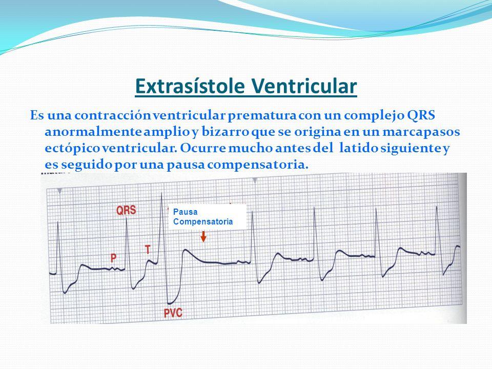Extrasístole Ventricular Es una contracción ventricular prematura con un complejo QRS anormalmente amplio y bizarro que se origina en un marcapasos ec