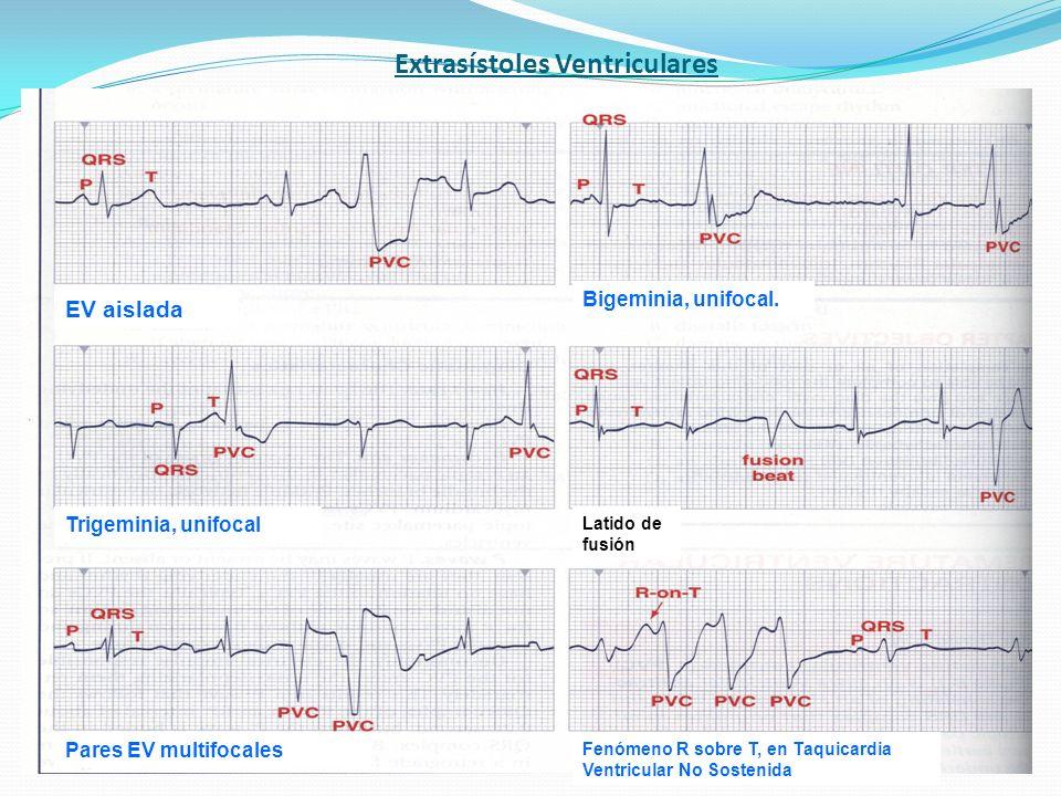 Extrasístoles Ventriculares EV aislada Bigeminia, unifocal. Trigeminia, unifocal Pares EV multifocales Fenómeno R sobre T, en Taquicardia Ventricular