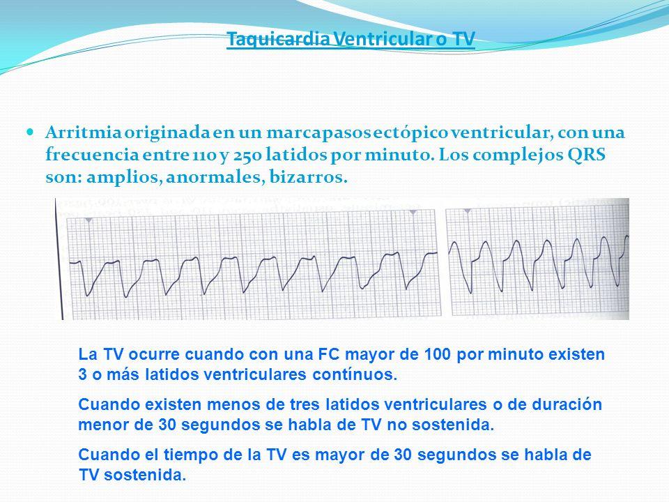 Taquicardia Ventricular o TV Arritmia originada en un marcapasos ectópico ventricular, con una frecuencia entre 110 y 250 latidos por minuto. Los comp