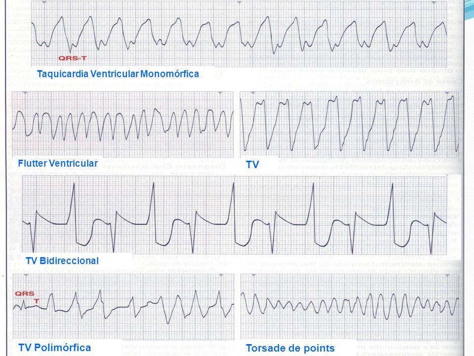 TV Bidireccional TV Polimórfica Torsade de points Flutter Ventricular TV Taquicardia Ventricular Monomórfica