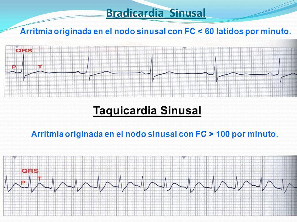 Bradicardia Sinusal Taquicardia Sinusal Arritmia originada en el nodo sinusal con FC < 60 latidos por minuto. Arritmia originada en el nodo sinusal co