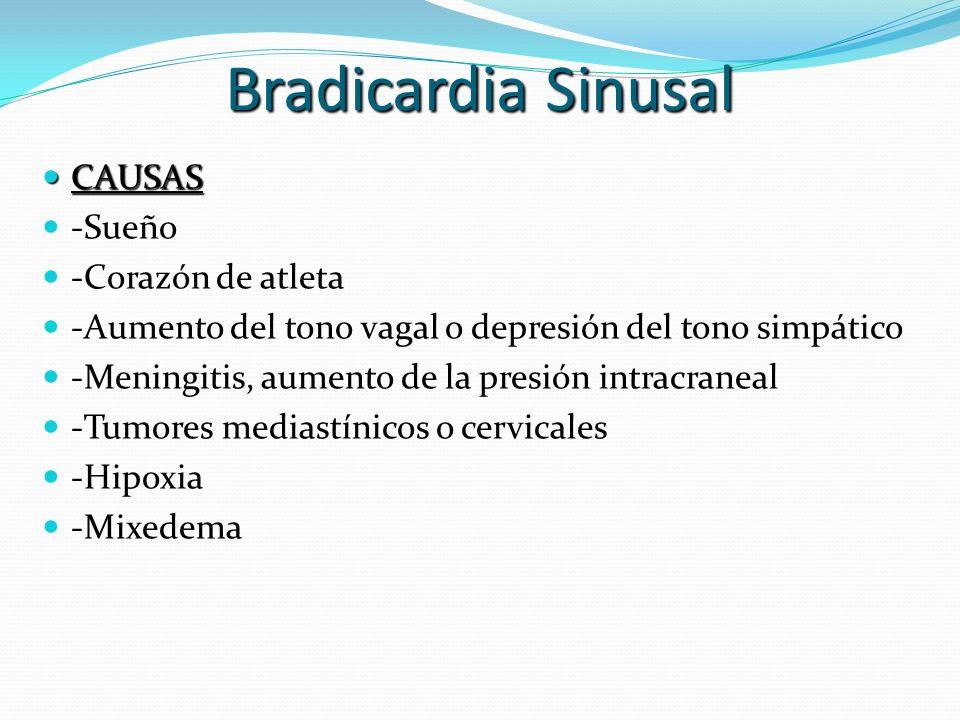 Bradicardia Sinusal CAUSAS CAUSAS -Sueño -Corazón de atleta -Aumento del tono vagal o depresión del tono simpático -Meningitis, aumento de la presión