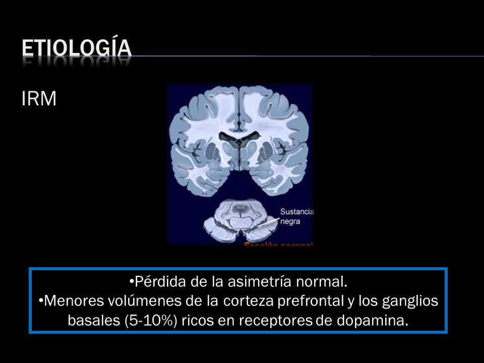 IRM Pérdida de la asimetría normal. Menores volúmenes de la corteza prefrontal y los ganglios basales (5-10%) ricos en receptores de dopamina.
