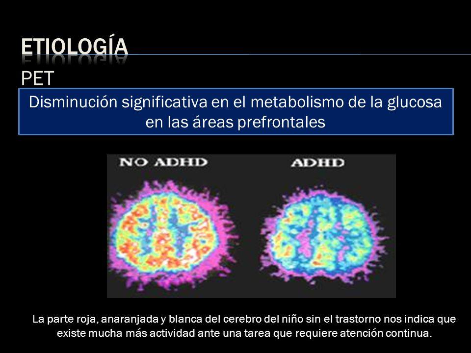 PET La parte roja, anaranjada y blanca del cerebro del niño sin el trastorno nos indica que existe mucha más actividad ante una tarea que requiere ate