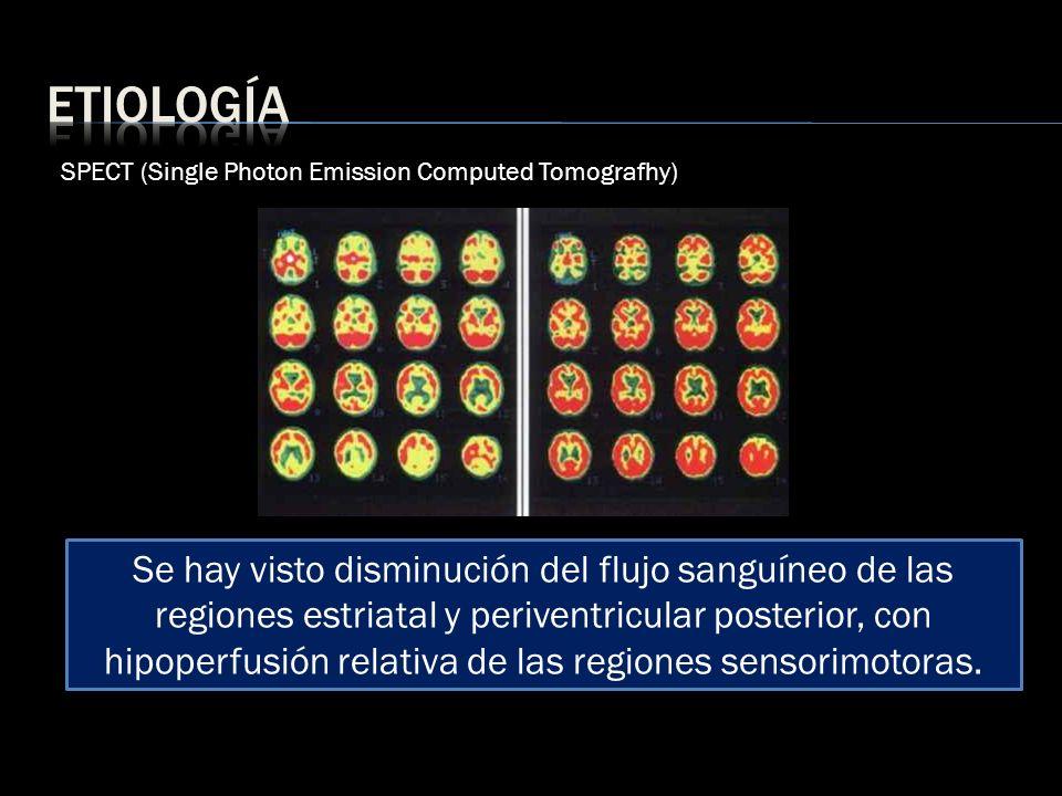 SPECT (Single Photon Emission Computed Tomografhy) Se hay visto disminución del flujo sanguíneo de las regiones estriatal y periventricular posterior,