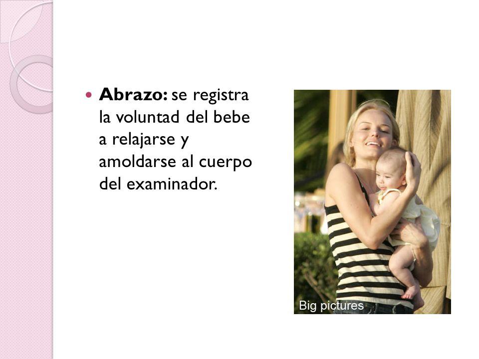 Abrazo: se registra la voluntad del bebe a relajarse y amoldarse al cuerpo del examinador.