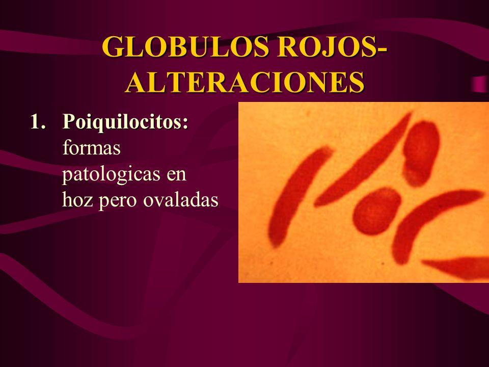 GLOBULOS ROJOS- ALTERACIONES 1.Poiquilocitos: 1.Poiquilocitos: formas patologicas en hoz pero ovaladas