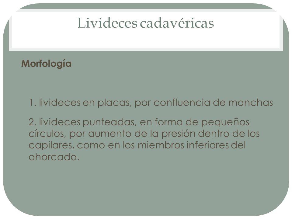 Livideces cadavéricas Morfología 1. livideces en placas, por confluencia de manchas 2. livideces punteadas, en forma de pequeños círculos, por aumento