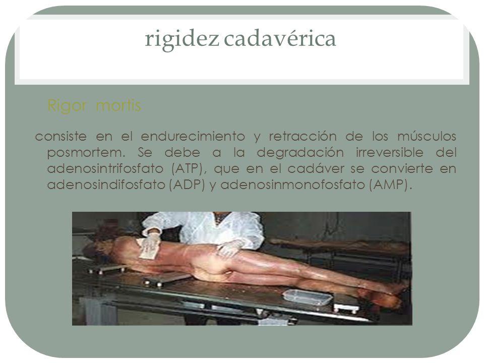rigidez cadavérica Rigor mortis consiste en el endurecimiento y retracción de los músculos posmortem. Se debe a la degradación irreversible del adenos