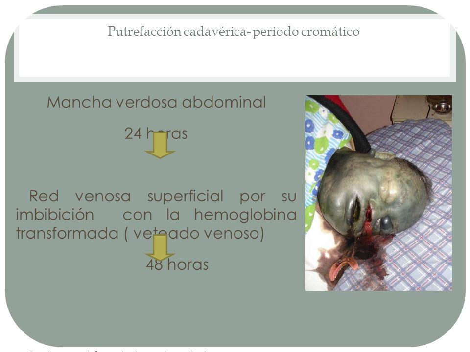 Putrefacción cadavérica- periodo cromático Mancha verdosa abdominal 24 horas Red venosa superficial por su imbibición con la hemoglobina transformada