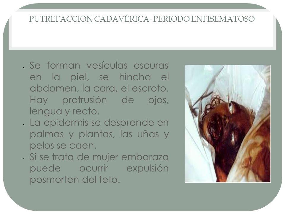 PUTREFACCIÓN CADAVÉRICA- PERIODO ENFISEMATOSO Se forman vesículas oscuras en la piel, se hincha el abdomen, la cara, el escroto. Hay protrusión de ojo