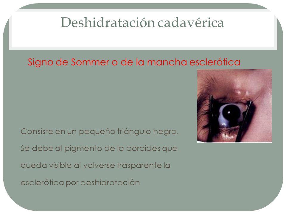 Deshidratación cadavérica Signo de Sommer o de la mancha esclerótica Consiste en un pequeño triángulo negro. Se debe al pigmento de la coroides que qu