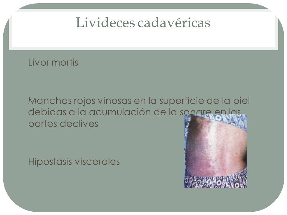 Livideces cadavéricas Livor mortis Manchas rojos vinosas en la superficie de la piel debidas a la acumulación de la sangre en las partes declives Hipo