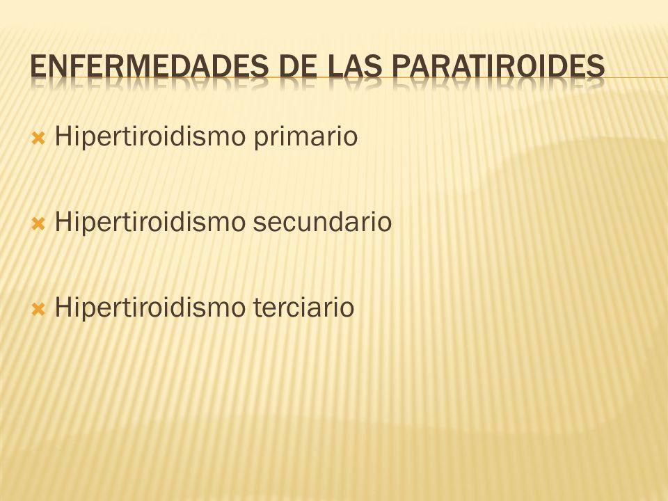 Hipertiroidismo primario Hipertiroidismo secundario Hipertiroidismo terciario