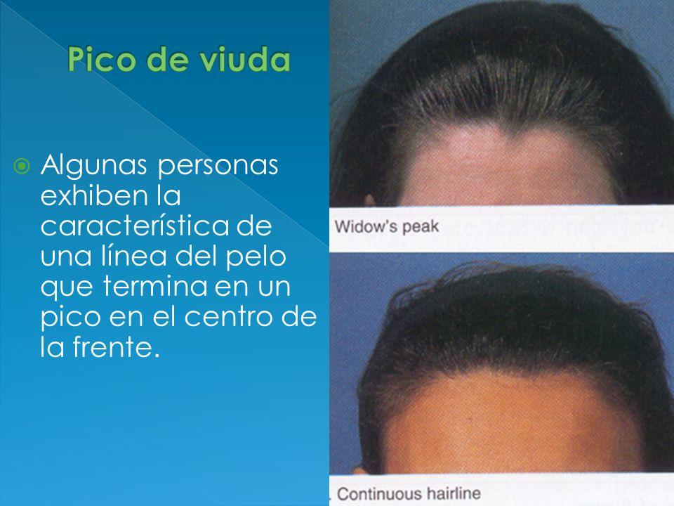 Algunas personas exhiben la característica de una línea del pelo que termina en un pico en el centro de la frente.
