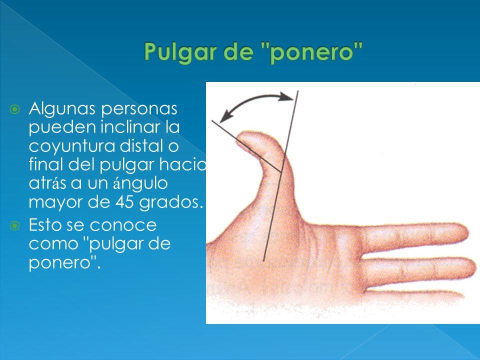 Algunas personas pueden inclinar la coyuntura distal o final del pulgar hacia atr á s a un á ngulo mayor de 45 grados. Esto se conoce como