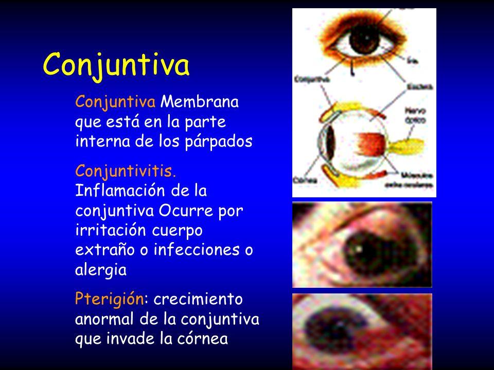 Conjuntiva Conjuntiva Membrana que está en la parte interna de los párpados Conjuntivitis. Inflamación de la conjuntiva Ocurre por irritación cuerpo e